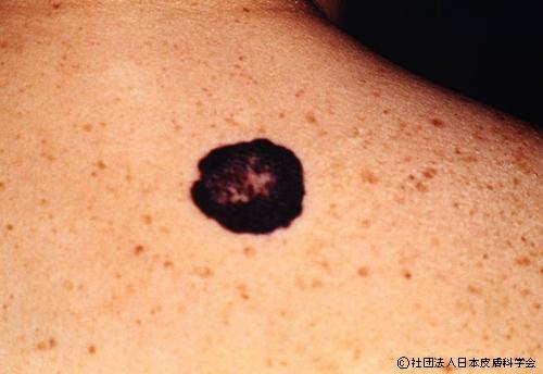 大きなほくろに似た皮膚ガン
