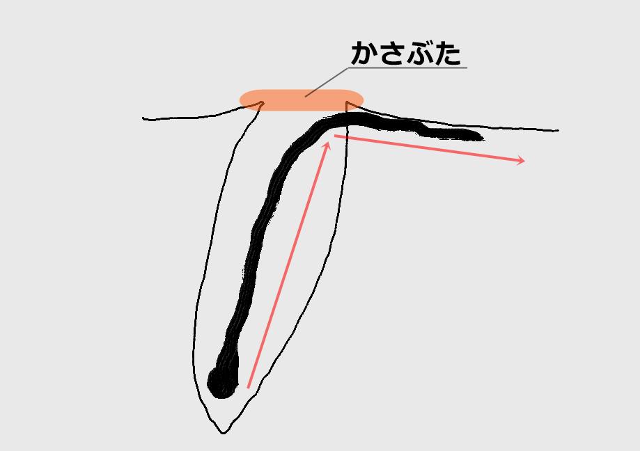 埋没毛の断面図