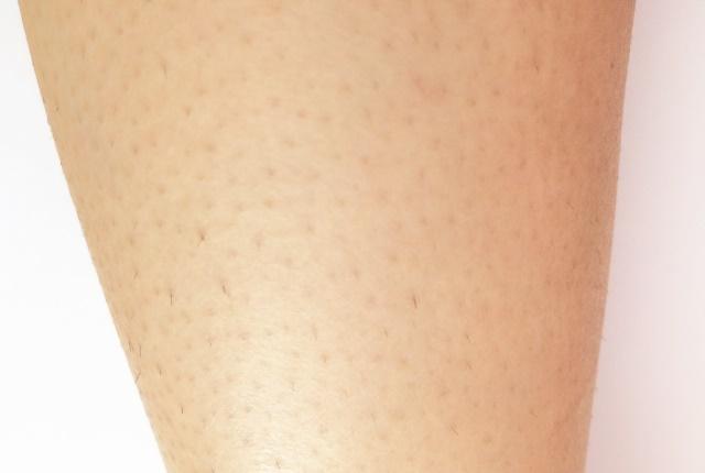 腕の拡大写真