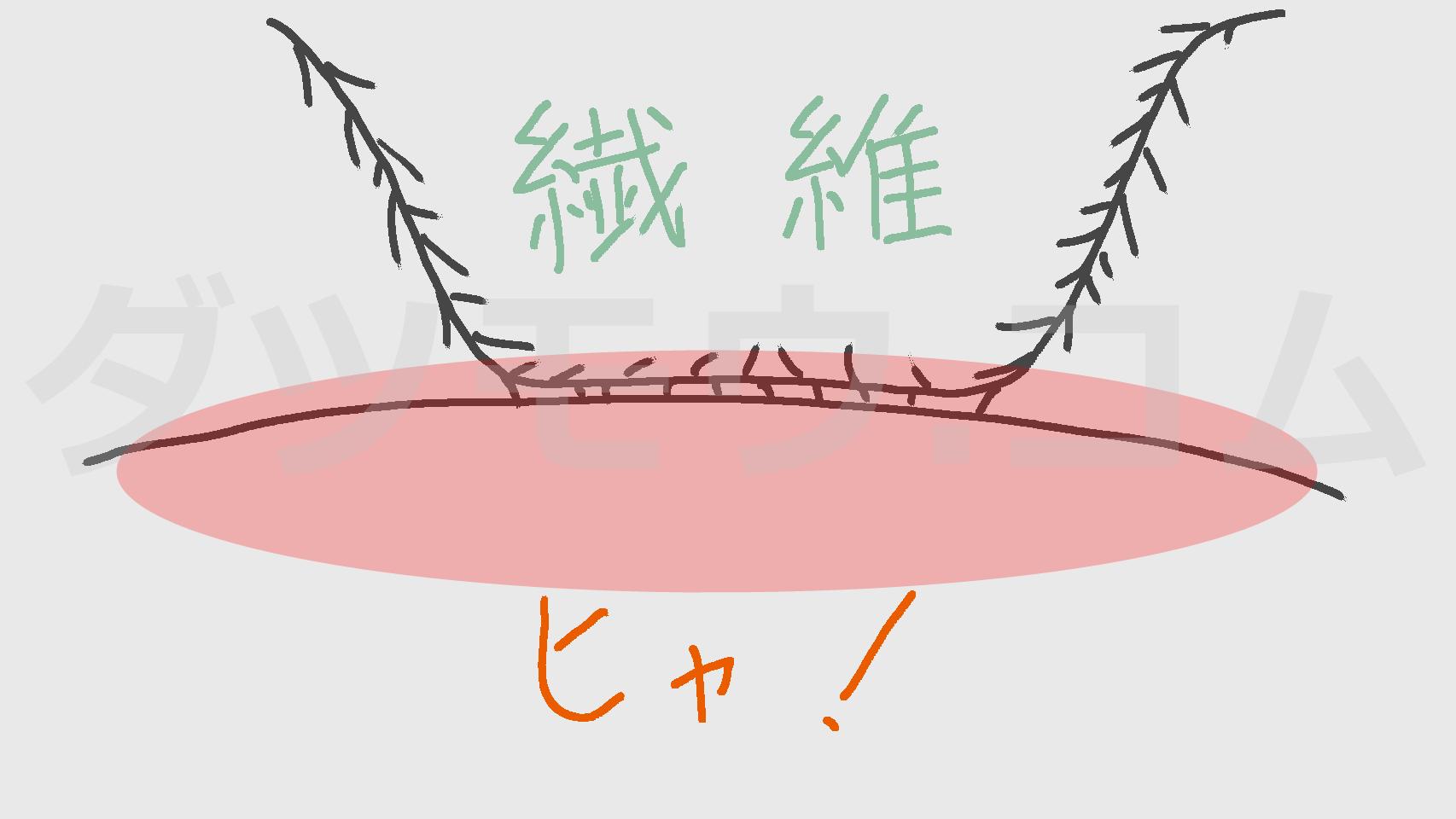 vio周辺と繊維の摩擦の説明図