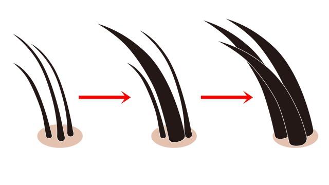硬毛化と増毛化の様子