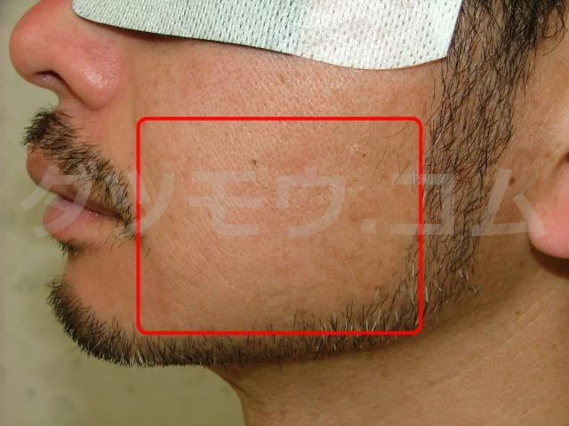 髭を生やした男性の横顔