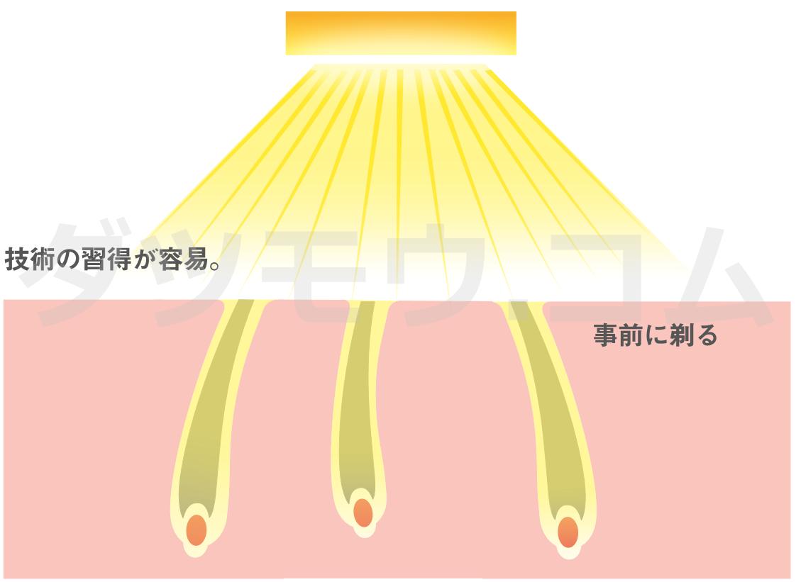 光脱毛の解説