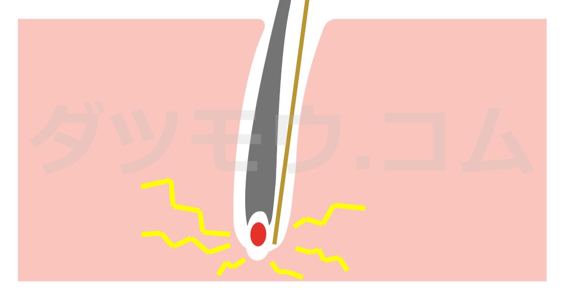 毛根に電流が流れる