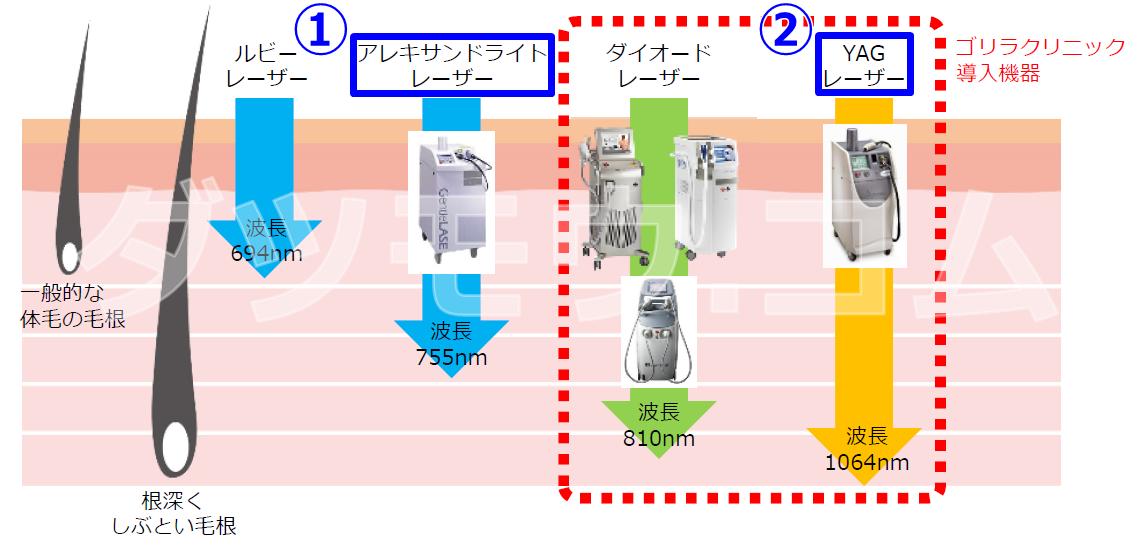 ジェントルmaxの解説図