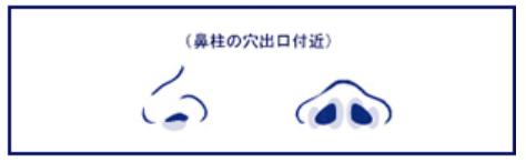 ゴリラクリニックの鼻脱毛解説図
