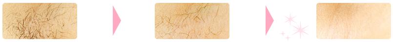 TBCの美容電気脱毛