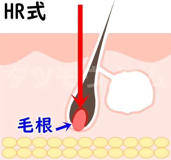 毛根と赤い矢印