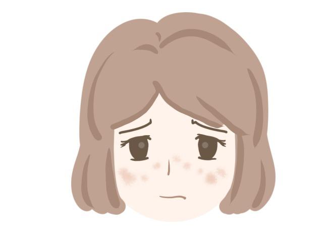 頬に肝斑ができた女性