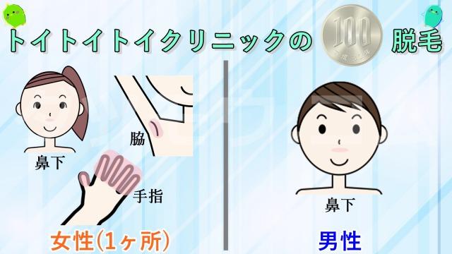 トイトイトイクリニックの100円脱毛の解説図