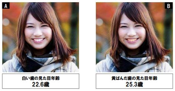 歯の色だけが違う女性の写真