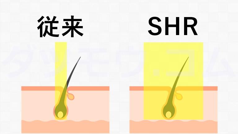 従来とSHRの比較